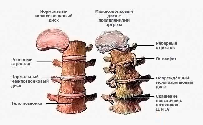 межпозвонковый остеохондроз поясничного отдела позвоночника должно быть!